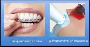 blanqueamiento para los dientes