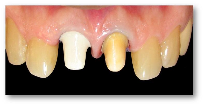 rehabilitación oral 2 antes