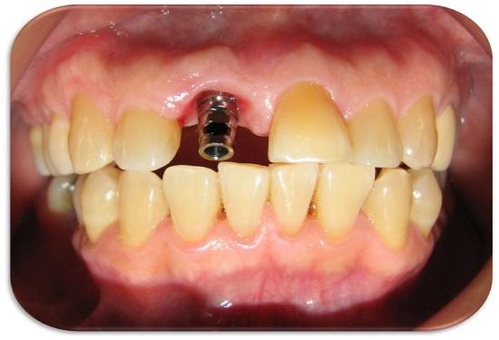 rehabilitación oral antes