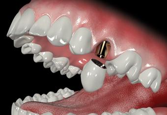 rehabilitacion_oral_estheticplus1